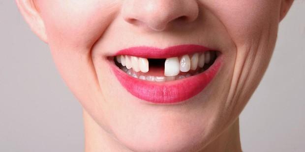 Bọc răng sứ không đảm bảo chất lượng, bạn phải đối mặt với những nguy cơ không ngờ - Ảnh 5.