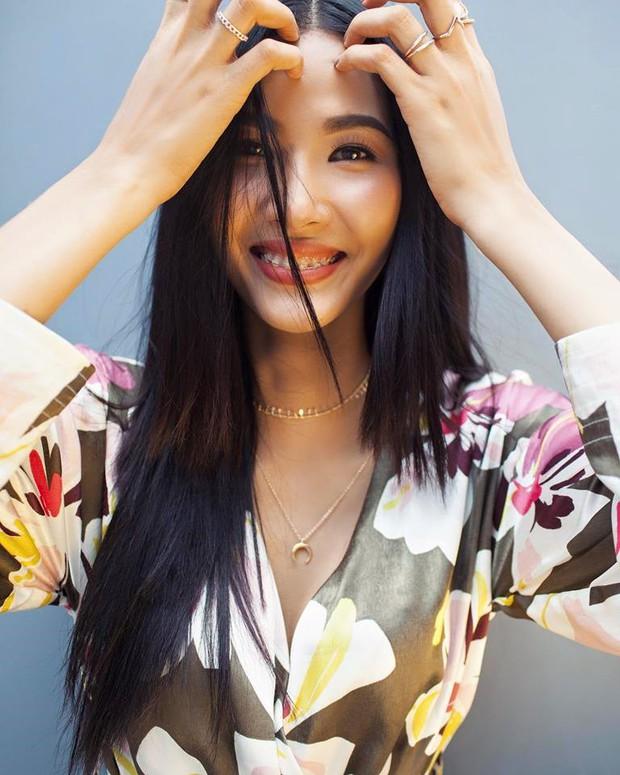 Hoàng Thuỳ đeo niềng răng, bước chuẩn bị đầu tiên cho hành trình đến với Miss Universe 2019? - Ảnh 1.