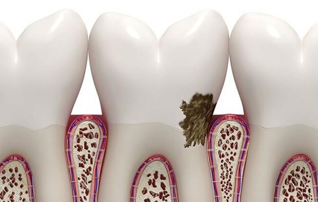 Dấu hiệu bệnh nướu răng không nên bỏ qua - Ảnh 5.