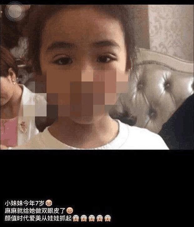 Mẹ trẻ khoe thành tựu đem con gái 7 tuổi đi cắt mí, tưởng được khen nào ngờ bị dân tình chỉ trích dữ dội - Ảnh 2.