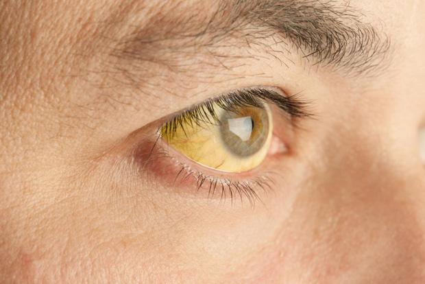 Đừng chủ quan khi gặp phải những triệu chứng này, rất có thể chúng là nguyên nhân gây bệnh sỏi mật - Ảnh 4.