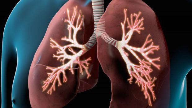 4 nguyên nhân dẫn đến bệnh ung thư phổi mà nhiều người thường chủ quan bỏ qua - Ảnh 2.