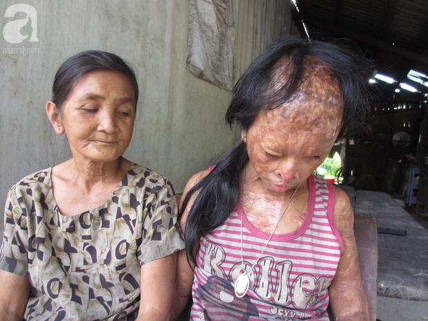 Bé gái bị tạt axit năm 7 tuổi vì mẹ giật chồng người khác: Con từng nghĩ sẽ không sao, nhưng giờ con biết con bị mù thật rồi  - Ảnh 2.