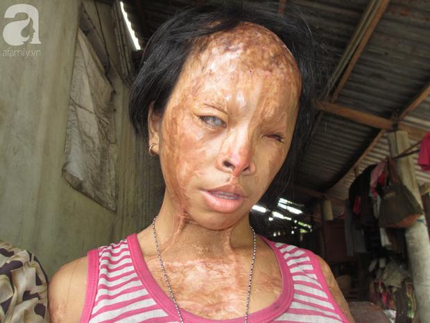 Bé gái bị tạt axit năm 7 tuổi vì mẹ giật chồng người khác: Con từng nghĩ sẽ không sao, nhưng giờ con biết con bị mù thật rồi  - Ảnh 6.