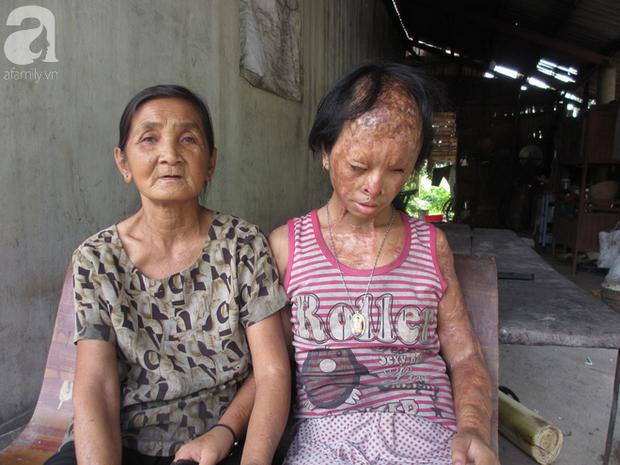 Bé gái bị tạt axit năm 7 tuổi vì mẹ giật chồng người khác: Con từng nghĩ sẽ không sao, nhưng giờ con biết con bị mù thật rồi  - Ảnh 7.