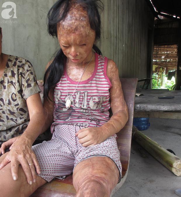Bé gái bị tạt axit năm 7 tuổi vì mẹ giật chồng người khác: Con từng nghĩ sẽ không sao, nhưng giờ con biết con bị mù thật rồi  - Ảnh 9.