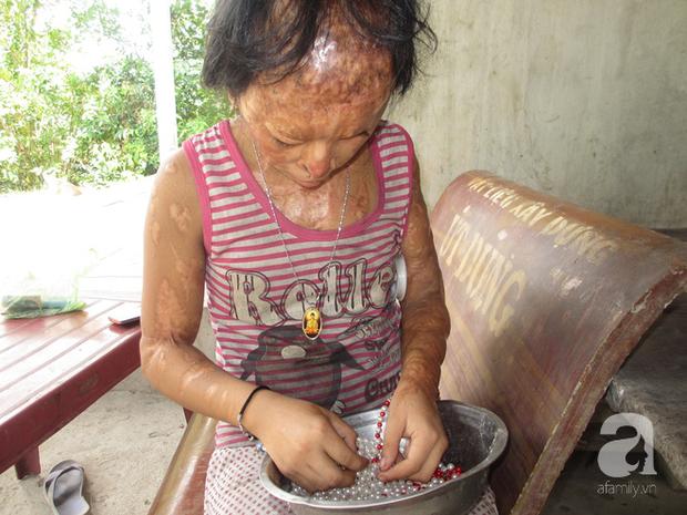 Bé gái bị tạt axit năm 7 tuổi vì mẹ giật chồng người khác: Con từng nghĩ sẽ không sao, nhưng giờ con biết con bị mù thật rồi  - Ảnh 10.