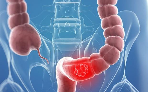 5 nguyên nhân không ngờ gây ung thư đại tràng mà nhiều người vẫn chủ quan bỏ qua - Ảnh 5.