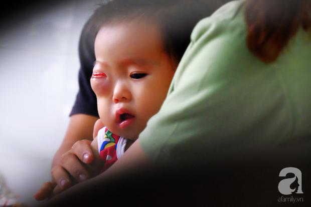 Em bé 2 tuổi ở Cà Mau bị u mắt nguy hiểm, bố mẹ nghèo cố tìm cách cứu con trong tuyệt vọng - Ảnh 1.