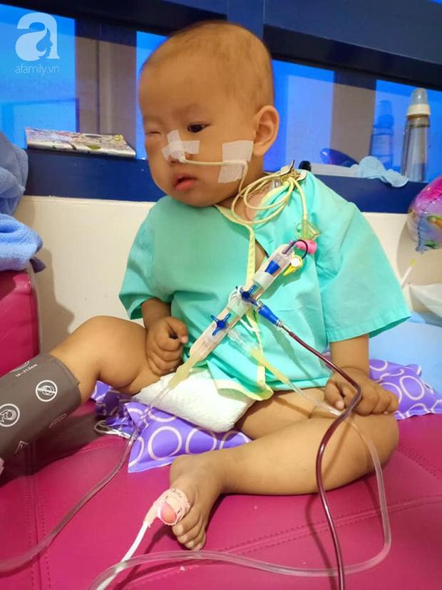 Em bé 2 tuổi ở Cà Mau bị u mắt nguy hiểm, bố mẹ nghèo cố tìm cách cứu con trong tuyệt vọng - Ảnh 6.