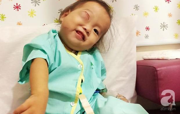 Em bé 2 tuổi ở Cà Mau bị u mắt nguy hiểm, bố mẹ nghèo cố tìm cách cứu con trong tuyệt vọng - Ảnh 7.