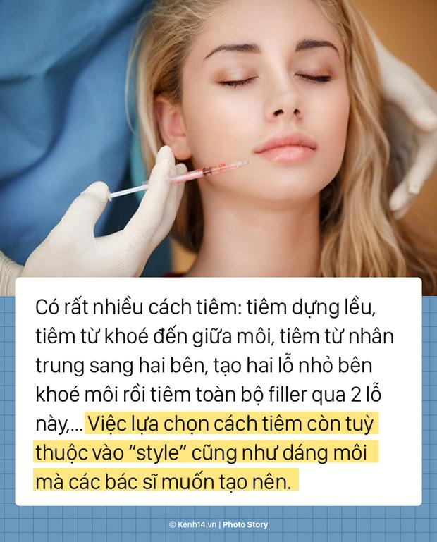 Quy trình tiêm filler để có một đôi môi tều chuẩn sexy - Ảnh 5.