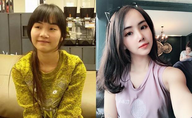 Từng bị bạn bè cầm chổi ném vì xấu xí, cô gái Hà Nội hở hàm ếch lột xác, đổi đời sau phẫu thuật thẩm mỹ - Ảnh 1.