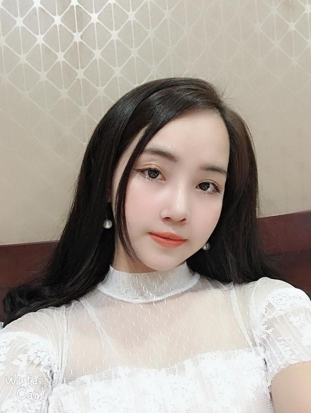 Từng bị bạn bè cầm chổi ném vì xấu xí, cô gái Hà Nội hở hàm ếch lột xác, đổi đời sau phẫu thuật thẩm mỹ - Ảnh 5.