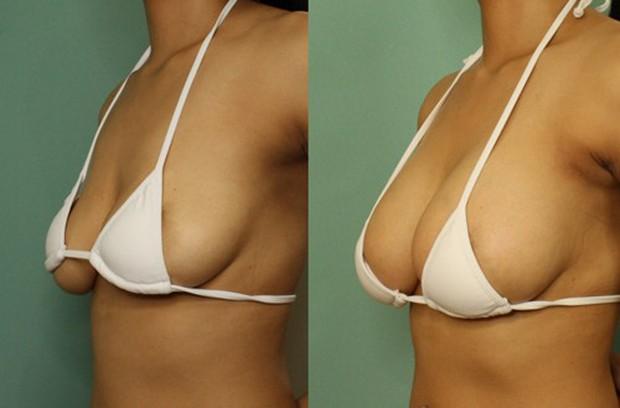 Kết quả hình ảnh cho ngực chảy xệ