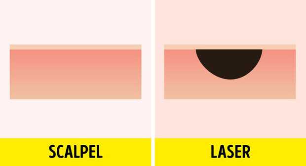 Nốt ruồi ai cũng có nhưng 5 chuyện hoang đường này sẽ khiến nhiều bạn ngỡ ngàng - Ảnh 3.