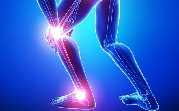 6 dấu hiệu cảnh báo sớm bệnh ung thư xương mà bạn không nên chủ quan bỏ qua - Ảnh 4.
