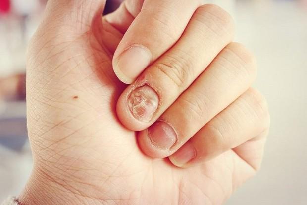 Đừng chủ quan, thói quen cắn móng tay có thể gây ra những hậu quả khôn lường cho sức khỏe mà bạn không ngờ tới - Ảnh 4.