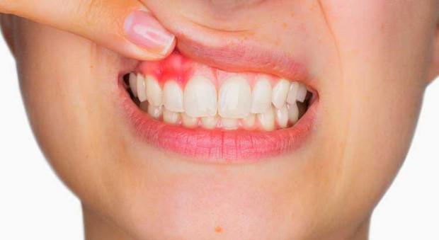 Những nguyên nhân cần lưu ý khi xuất hiện tình trạng chảy máu nướu khi đánh răng - Ảnh 1.