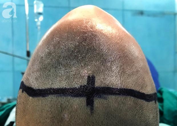 Phẫu thuật cứu bé trai 20 tháng tuổi mang đầu tam giác vì biến dạng hộp sọ - Ảnh 2.