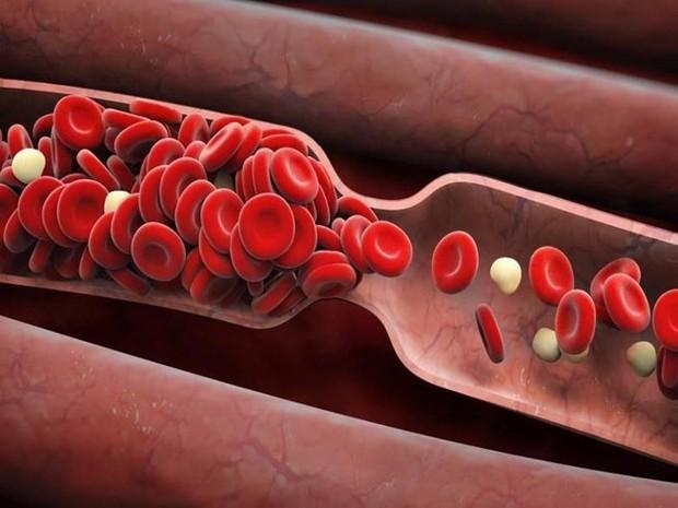 Thường xuyên ăn món ăn được chế biến theo kiểu này, người đàn ông phải nhập viện cấp cứu vì tắc mạch máu - Ảnh 1.