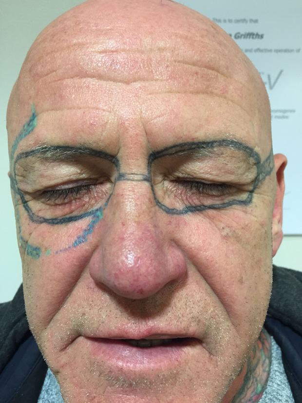 Tỉnh dậy sau bữa tiệc túy lúy, ông bác xứ Wales ngỡ ngàng nhận ra mình có hình xăm kính Rayban trên mặt - Ảnh 1.