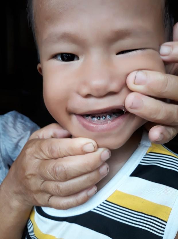 Cha tàn tật đội mưa bán tăm dạo, gom từng đồng chữa bệnh cho con trai bị tim bẩm sinh và teo phổi - Ảnh 5.