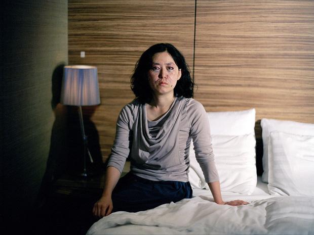 15 bức ảnh lột tả chân thật cái giá phải trả cho sắc đẹp hoàn mỹ của phụ nữ chính là đau đớn, máu và nước mắt - Ảnh 6.