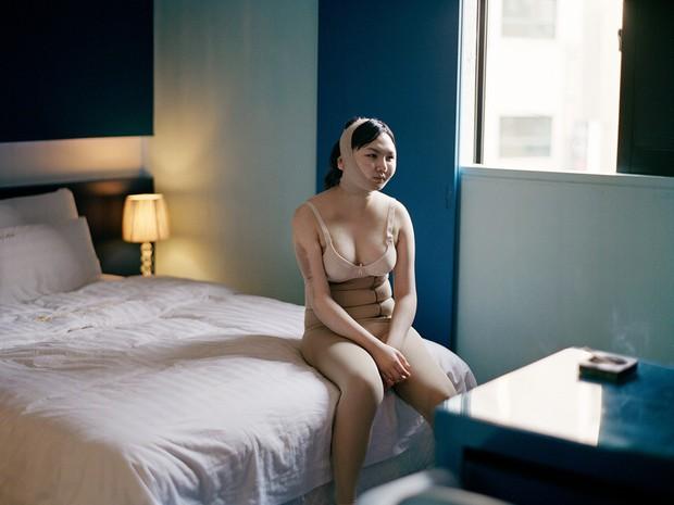 15 bức ảnh lột tả chân thật cái giá phải trả cho sắc đẹp hoàn mỹ của phụ nữ chính là đau đớn, máu và nước mắt - Ảnh 10.
