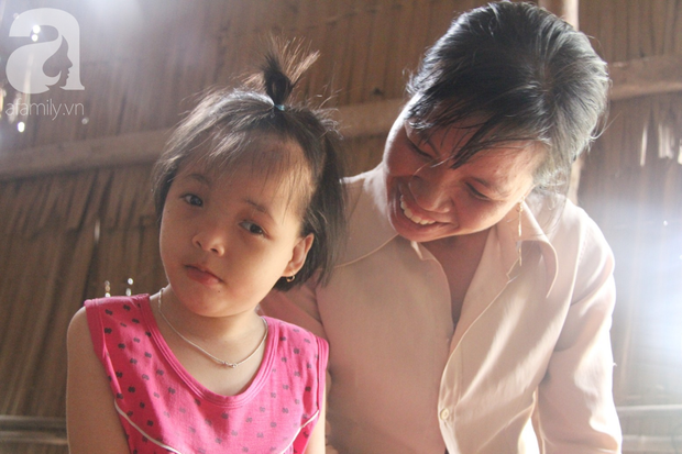 Xót cảnh bé gái 7 tuổi bị não úng thủy, suốt ngày chỉ biết lết theo mẹ xin ăn cơm mà không có tiền đi bệnh viện chữa trị - Ảnh 1.
