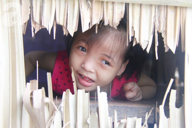 Xót cảnh bé gái 7 tuổi bị não úng thủy, suốt ngày chỉ biết lết theo mẹ xin ăn cơm mà không có tiền đi bệnh viện chữa trị - Ảnh 2.