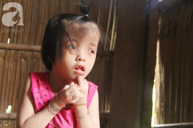 Xót cảnh bé gái 7 tuổi bị não úng thủy, suốt ngày chỉ biết lết theo mẹ xin ăn cơm mà không có tiền đi bệnh viện chữa trị - Ảnh 11.
