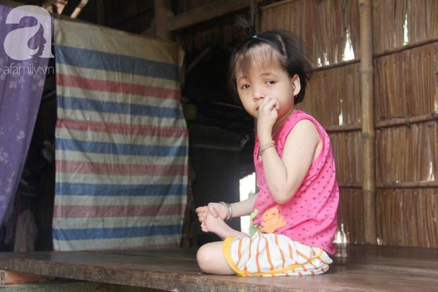 Xót cảnh bé gái 7 tuổi bị não úng thủy, suốt ngày chỉ biết lết theo mẹ xin ăn cơm mà không có tiền đi bệnh viện chữa trị - Ảnh 13.