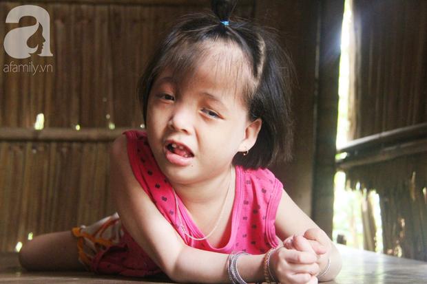 Xót cảnh bé gái 7 tuổi bị não úng thủy, suốt ngày chỉ biết lết theo mẹ xin ăn cơm mà không có tiền đi bệnh viện chữa trị - Ảnh 3.