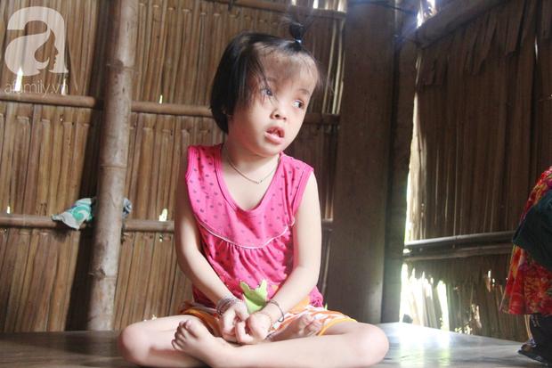 Xót cảnh bé gái 7 tuổi bị não úng thủy, suốt ngày chỉ biết lết theo mẹ xin ăn cơm mà không có tiền đi bệnh viện chữa trị - Ảnh 4.