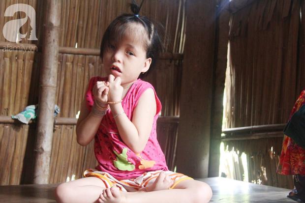 Xót cảnh bé gái 7 tuổi bị não úng thủy, suốt ngày chỉ biết lết theo mẹ xin ăn cơm mà không có tiền đi bệnh viện chữa trị - Ảnh 7.