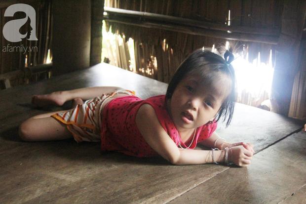 Xót cảnh bé gái 7 tuổi bị não úng thủy, suốt ngày chỉ biết lết theo mẹ xin ăn cơm mà không có tiền đi bệnh viện chữa trị - Ảnh 8.