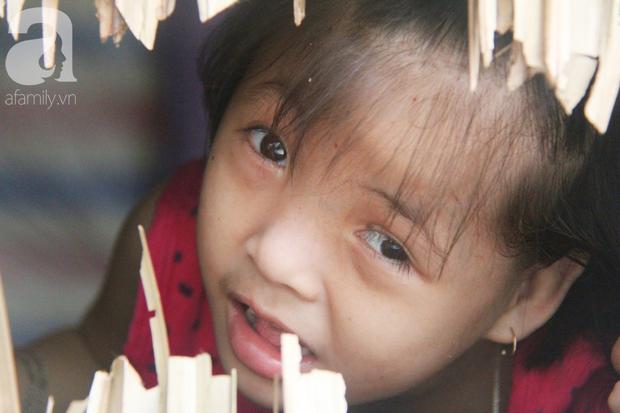 Xót cảnh bé gái 7 tuổi bị não úng thủy, suốt ngày chỉ biết lết theo mẹ xin ăn cơm mà không có tiền đi bệnh viện chữa trị - Ảnh 10.