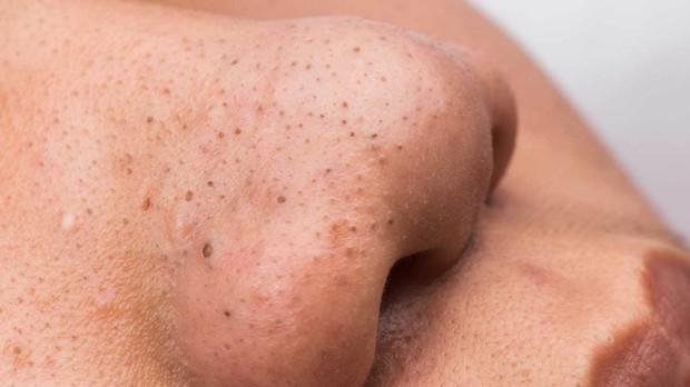 Thay đổi thói quen chăm sóc da để ngăn ngừa mụn đầu đen - Ảnh 1.