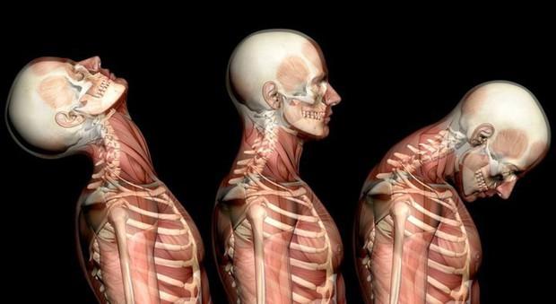 Nguyên nhân thường gặp của đau cổ - Ảnh 3.