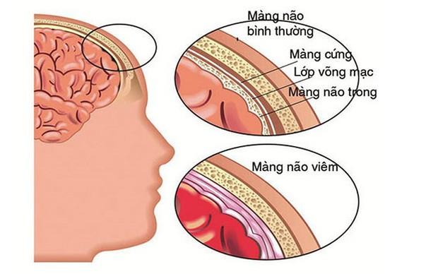 Nguyên nhân thường gặp của đau cổ - Ảnh 6.