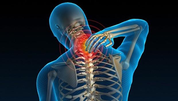 Nguyên nhân thường gặp của đau cổ - Ảnh 7.