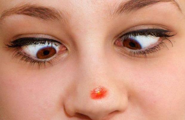 Mọc mụn ở bất kỳ vị trí nào trên khuôn mặt cũng có thể ngầm cảnh báo một vài vấn đề sức khỏe đang xảy ra trong cơ thể bạn - Ảnh 1.