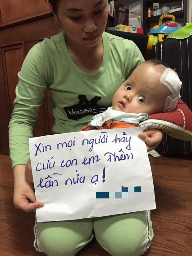 Thiếu kinh phí phẫu thuật cho con trai bị não úng thủy đang điều trị tại Singapore, người mẹ ôm con quỳ gối cầu cứu sự giúp đỡ - Ảnh 4.