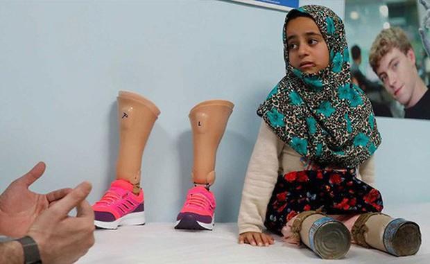 Kết thúc có hậu của cô bé Syria có đôi chân lon thiếc - Ảnh 2.