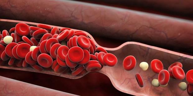 Những triệu chứng đông máu có thể dẫn đến đột quỵ mà bạn không nên phớt lờ - Ảnh 1.