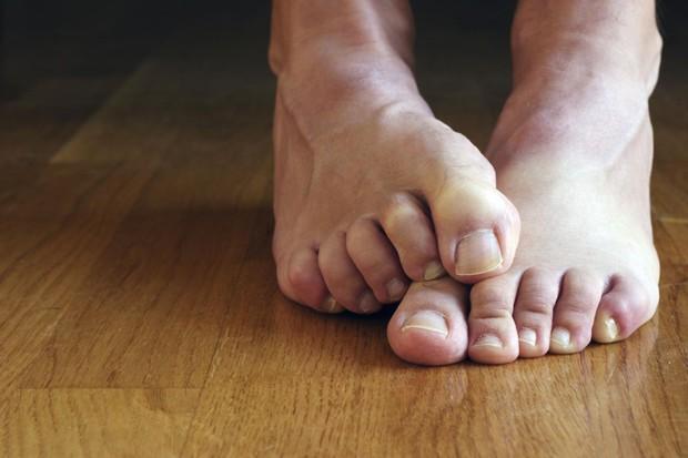 Hôi chân thường xuất hiện trong tiết trời nồm ẩm, làm thế nào để xử lý triệt để? - Ảnh 3.