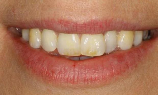Biểu hiện lạ của răng miệng có thể cảnh báo những căn bệnh tiềm ẩn bên trong - Ảnh 6.
