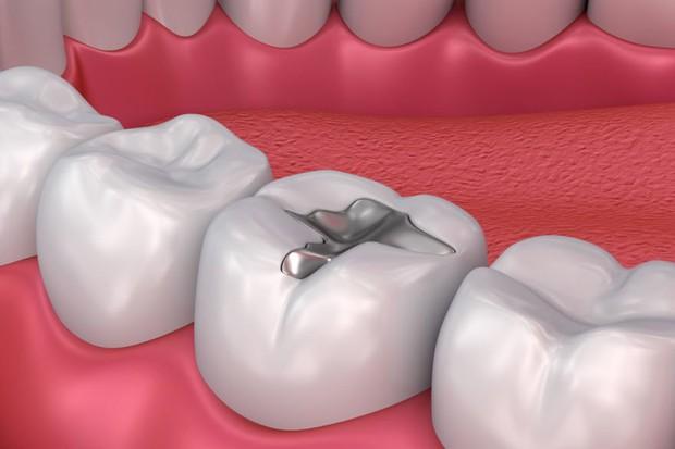 Hay bị ê buốt răng miệng thì đây chính là những cách giúp giảm bớt tình trạng này hiệu quả - Ảnh 6.