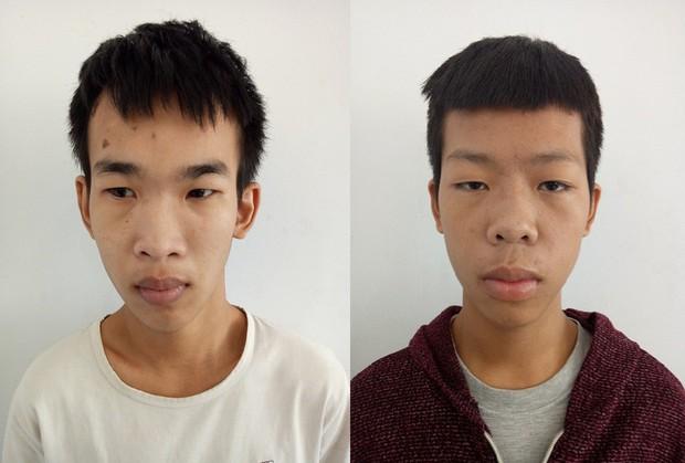Nhóm thanh thiếu niên chém nam sinh 15 tuổi cùng bạn gái gục giữa đường - Ảnh 1.
